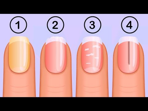 5 Things Your Nails Can Tell You About Your Health