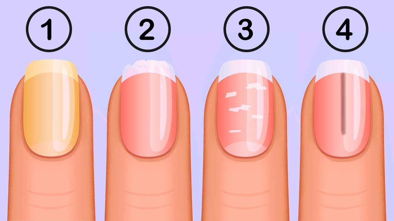 5 Things That Your Nails Say About Your Health - YouTube