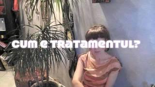 Tratamentul Parodontopatiei cu laser - Aplicatie si contraindicatii
