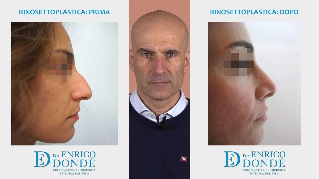 Rinosettoplastica prima e dopo   Dr. Enrico Dondè - YouTube