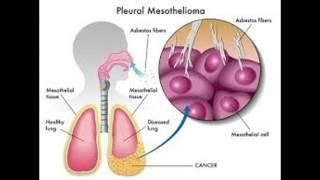 Asbestos Lung Cancer