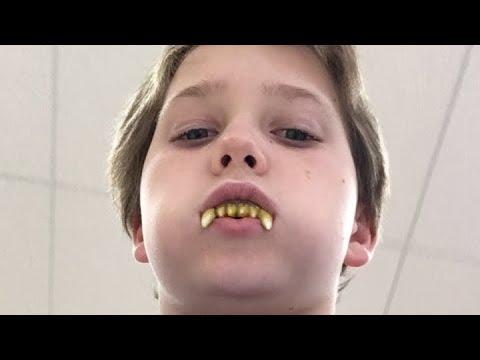 At target with werewolf teeth