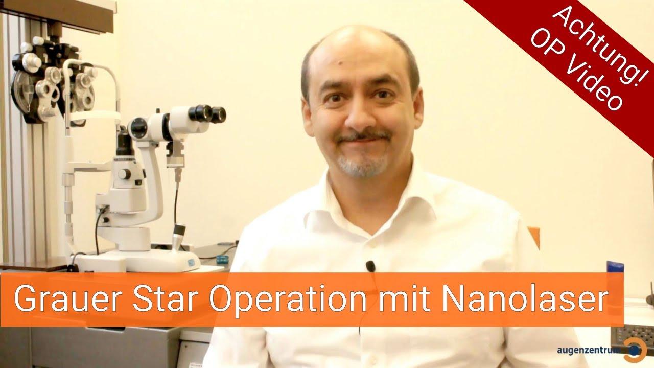 Grauer Star Operation mit Nanolaser im Augenzentrum in München