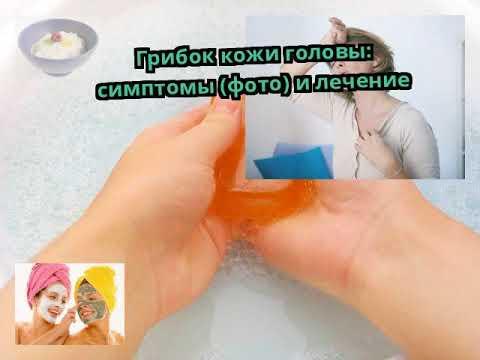 Грибок кожи головы: симптомы (фото) и лечение