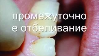 видео Отбеливание зубов, page 3