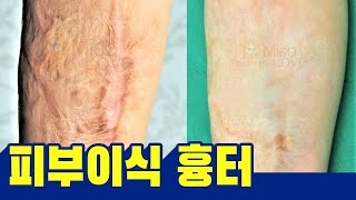 피부이식흉터와 흉터성형술로 남은 흉터- 오래된 흉터 포…