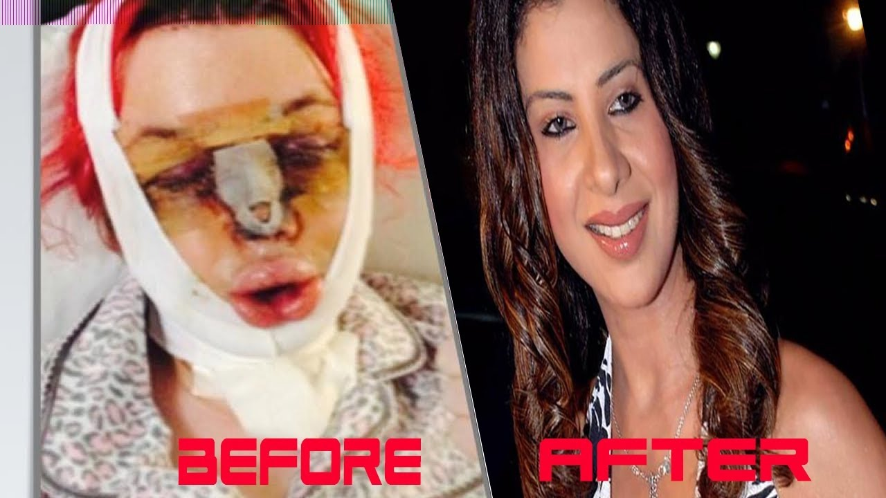 7 Bollywood Actress Plastic Surgery Before Amp After Gone