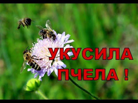 Укус пчелы, осы, что делать? Первая помощь при укусе пчелы