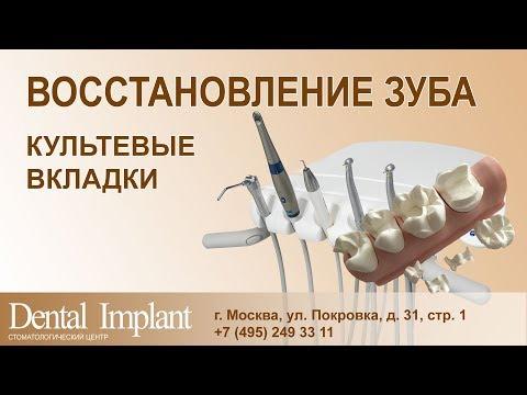 Зубные коронки: виды, цены, установка в Москве
