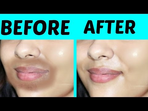 how to get rid of pigmentation around mouth