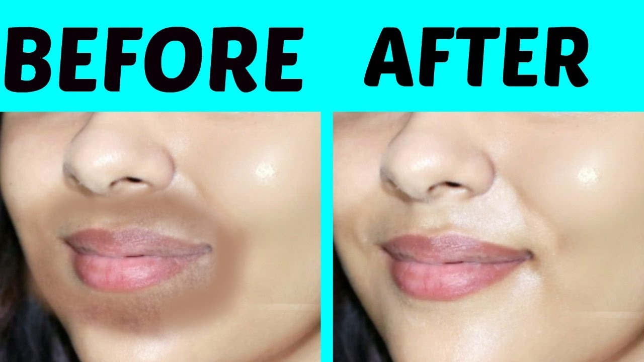 How To Remove Black Spots On Lips Fast | Lipsmakeup co