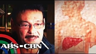 Mark Gil succumbed to liver cancer