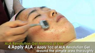 KB Cosmetics's ALA Revolution Gel for skin care! Thumbnail