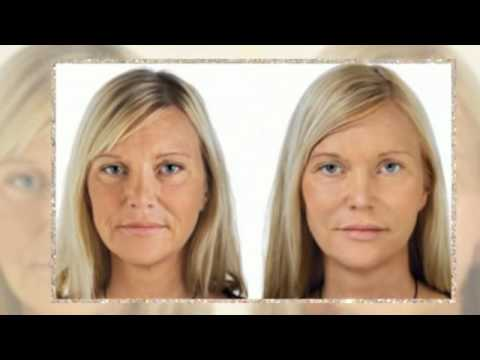 Retin A For Wrinkles Before And After