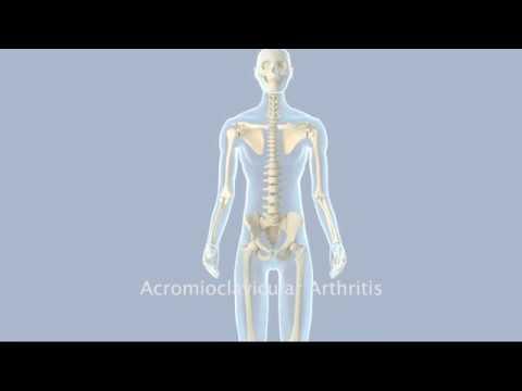 Acromioclavicular Arthritis