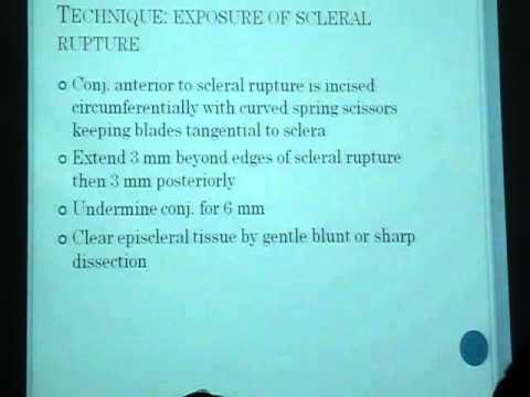 repair of rupture globe 3