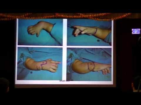 radial club hand. DR mukund thatte short case