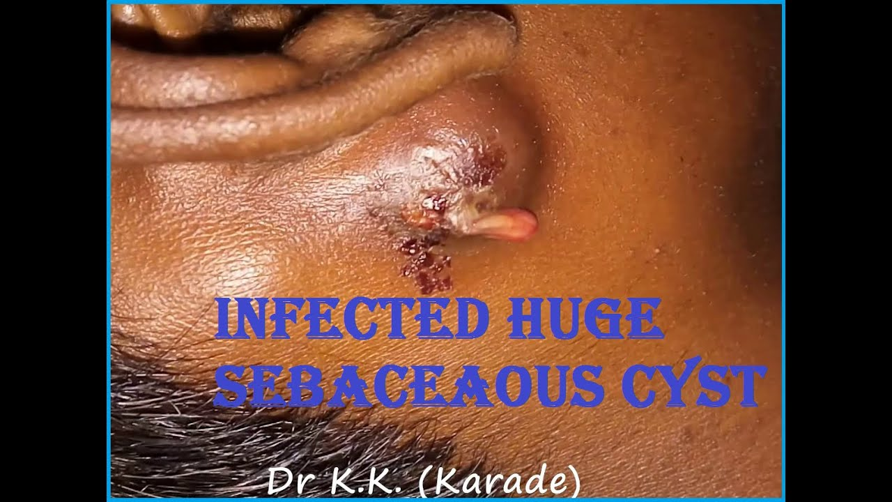 Infected Huge Sebaceaous Cyst in Postauricular Region (Behind Pinna)