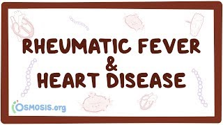 Rheumatic fever & heart disease – causes, symptoms, diagnosis, treatment, pathology