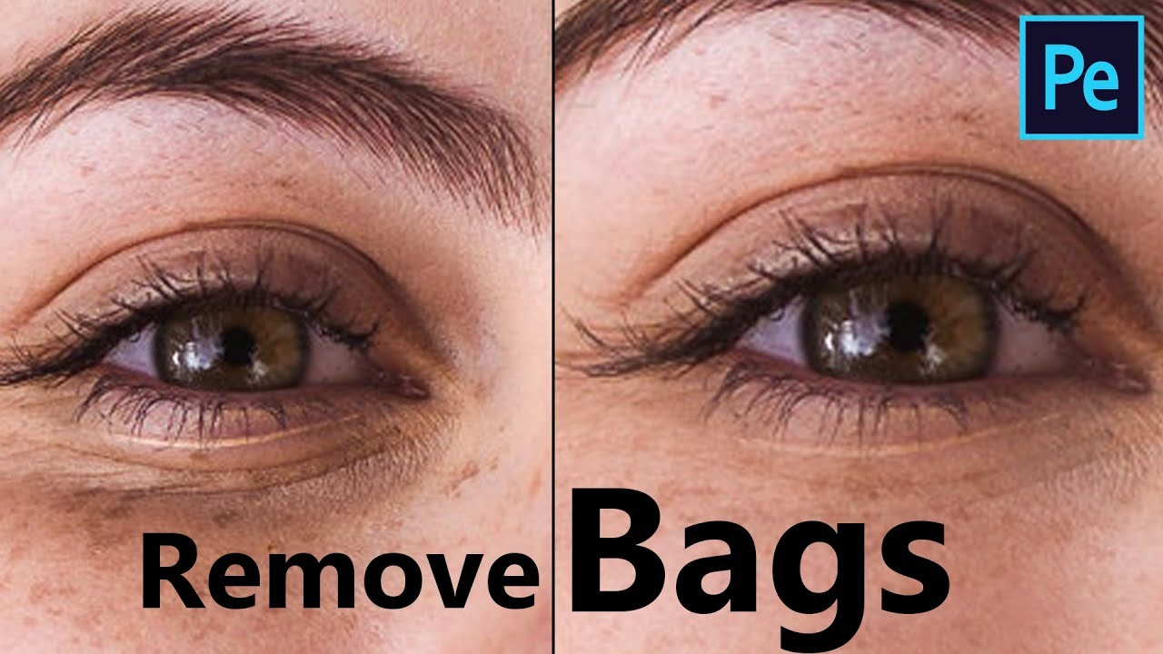 Two Way to Remove Bags from Under the Eyes and Dark ...