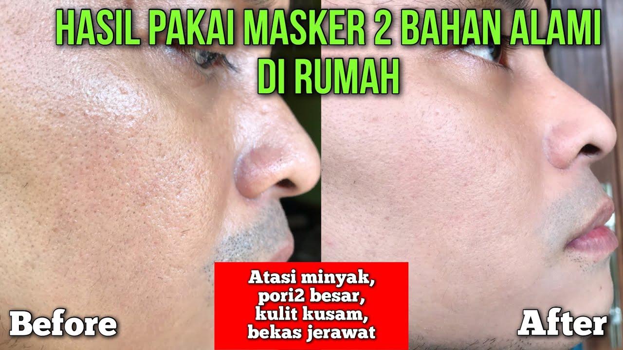 BAHAN ALAMI 3000 RUPIAH UNTUK BERKALI2 MASKER! WAJAH BEBAS MINYAK, PORI2 MENGECIL, LEBIH CERAH!!!