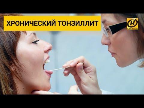 Как лечить хронический тонзиллит? Формула Здоровья