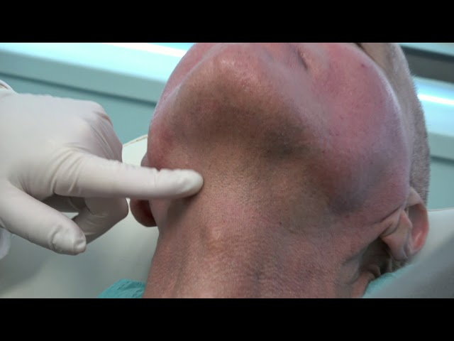 Infini RF Microneedling Neck Tightening