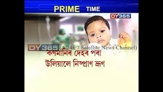 মহানগৰীৰ এক্সেল কেয়াৰ হাস্পতালত বিৰল অস্ত্ৰোপচাৰ || Very Very special baby, Excel Care Hospital