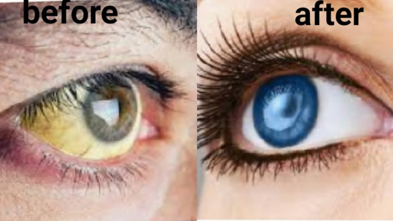 How To Whiten The White Of Your Eyes Naturally How To Brighten Eyes Youtube