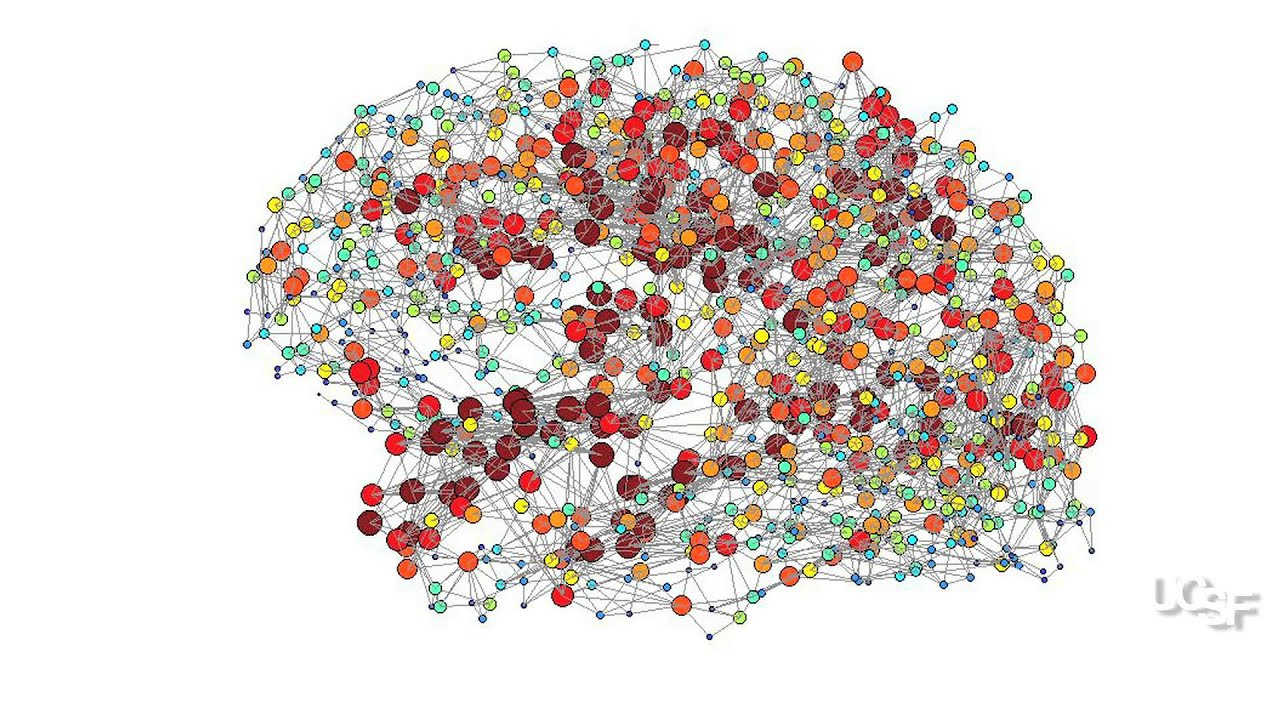 Connecting the Dots: Mapping the Brain in a Common Form of Autism ...