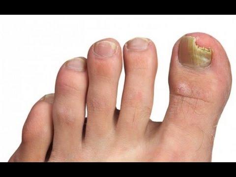 hongos en uñas como curar