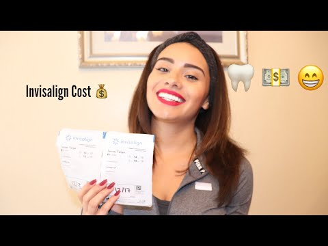 INVISALIGN VLOG 4 : INVISALIGN TOTAL COST & PAYMENTS EXPLAINED