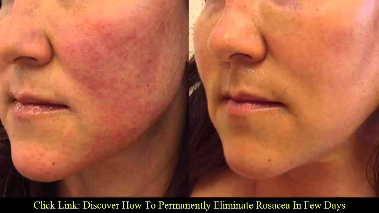 new rosacea treatment 2016