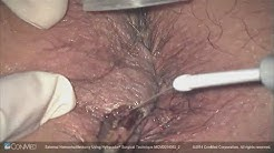 Dr. Stephen Goldstone - External Hemorrhoidectomy Using Hyfrecator® - ConMed