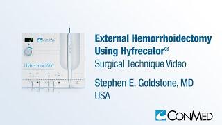 Dr. Stephen Goldstone - External Hemorrhoidectomy Using Hyfrecator® - ConMed