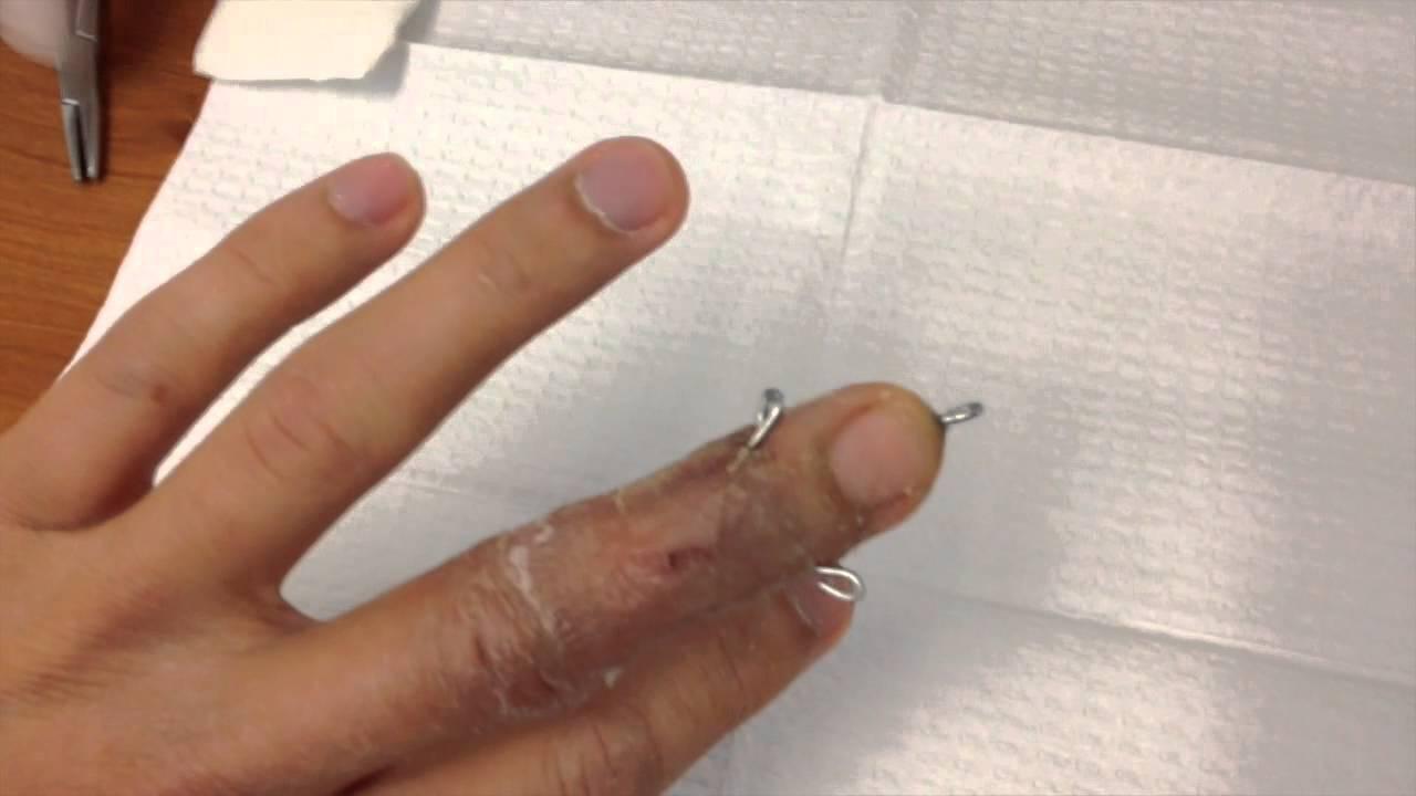 Broken finger pin removal - YouTube