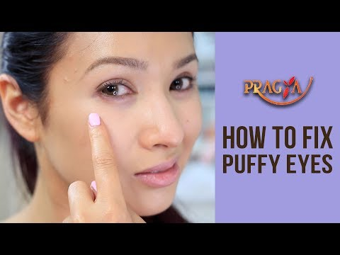 Puffy Eyes: Eye Care: Skincare Advice: How To Fix Puffy Eyes - Payal Sinha