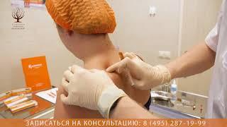 Плацентарная терапия препаратом Лаеннек по тригерным точкам!