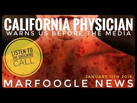SHARE THIS INFO NOW! CALIfORNIA! BE SAFE. MEASELS | TB | HEP A