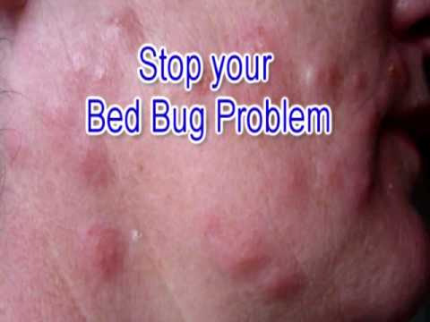 bed bugs get rid of bedbugs how to get rid of bedbugs yourself youtube. Black Bedroom Furniture Sets. Home Design Ideas