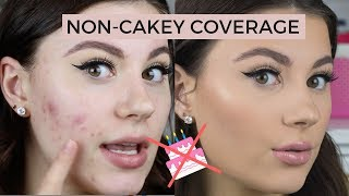 HOW TO COVER ACNE | NON CAKEY