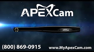 Introducing the All-New ApexCam Intraoral Camera