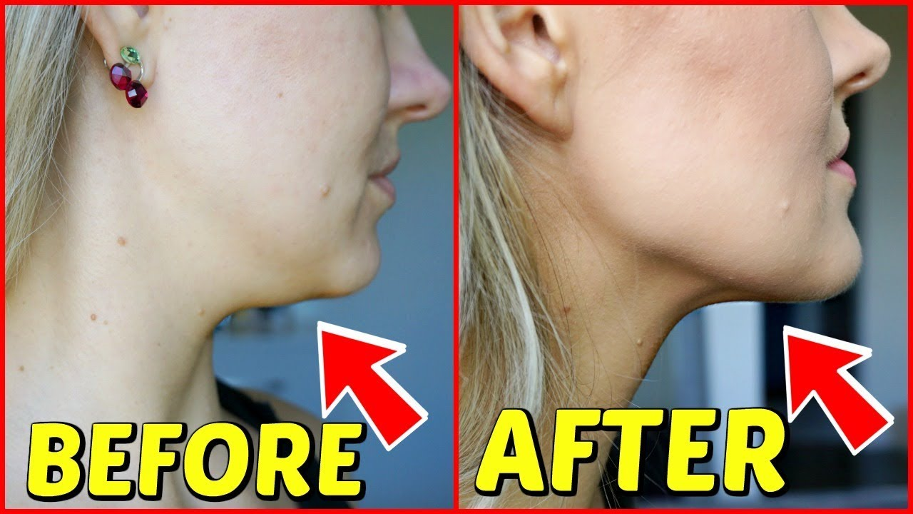 KYBELLA BEFORE AND AFTER 1 MONTH PICTURES