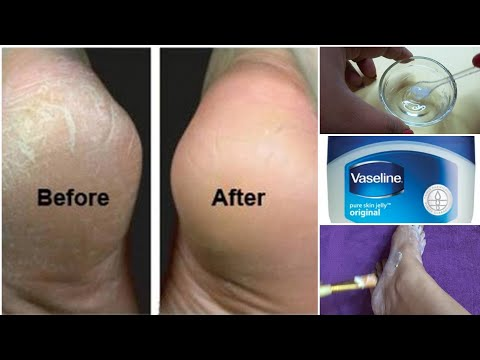 DIY Cracked Heels Remedy| Amazing Home Remedies for Cracked Heels Treatment|In 3 Days