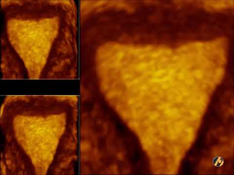 Poliklinika Harni - Ultrazvuk u ginekologiji