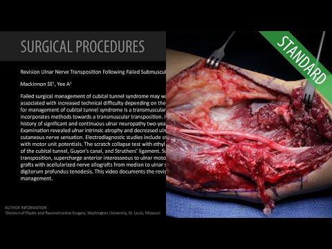 revision-ulnar-nerve-transposition-following-failed-submuscular---standard-(feat.-dr.-mackinnon)