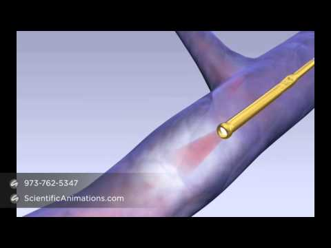 Laser Fiber Treatment - Medical Device Training