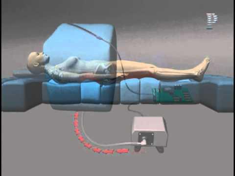 Pressure sore prevention bed
