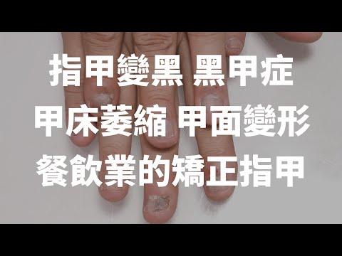 指甲變黑 黑甲症 甲床萎縮 甲面變形-餐飲業的矯正指甲