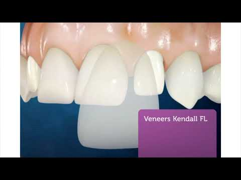 Miami Dental Group - Best Veneers in Kendall, FL